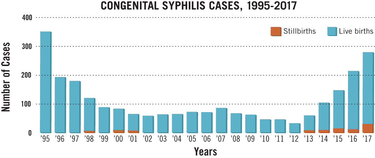 Congenital syphilis cases, 1995 to 2017. Graph data courtesy of cdeph.ca.gov.